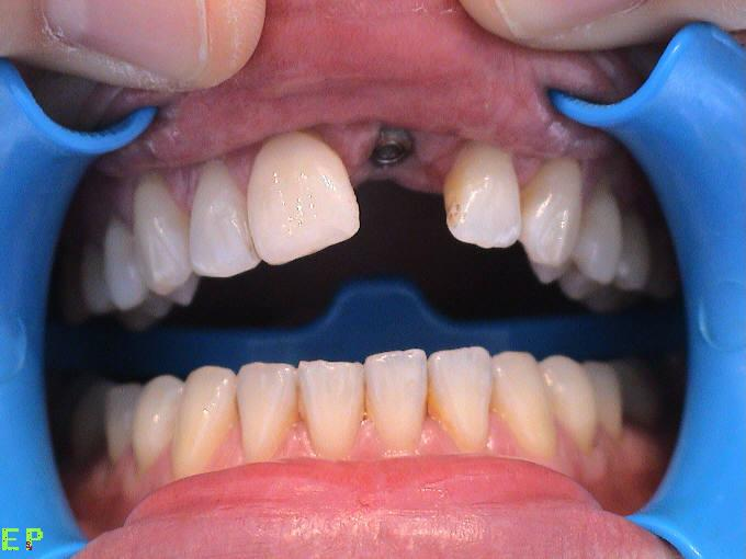 implants_incisor_before