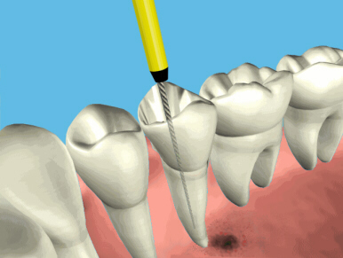 root_canal_endo1