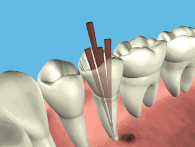 root_canal_endo2