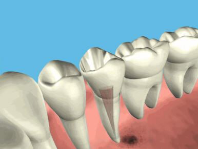 root_canal_endo3