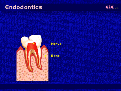 root_canal_endod1