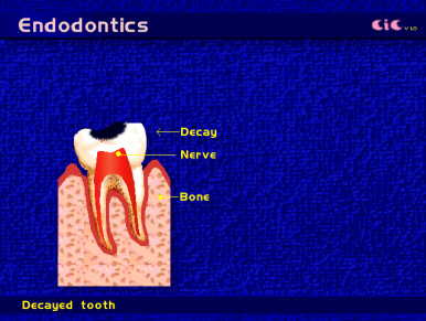 root_canal_endod2