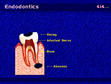 root_canal_endod3