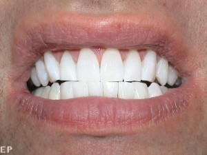 whitening_after2