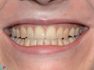 whitening_before