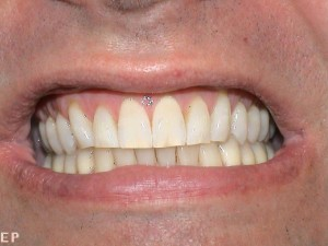 whitening_before2